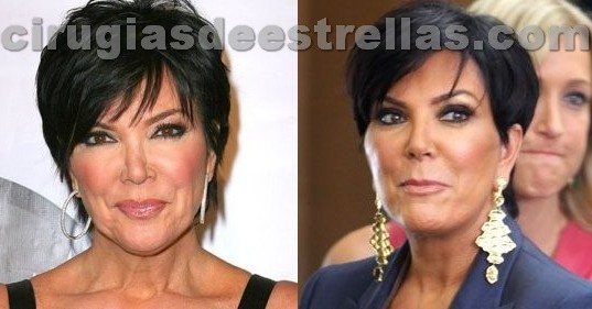 Lifting de Kris Jenner
