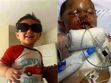 "SWAT Commando Raid On Wrong House Leads To $1 Million Medical Bill for Toddler Hurt by Stun Grenade in Janesville, Wisconsin Bounkham Phonesavanh Jr., known as ""Bou Bou,"" (Courtesy Phonesavanh Family)."