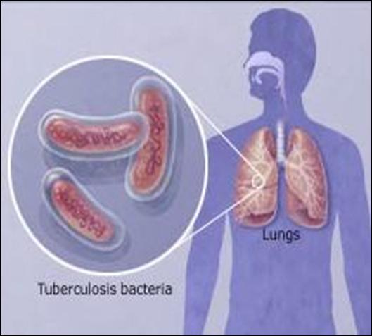 diagnostico de mycobacterium tuberculosis: