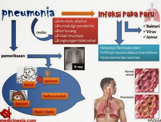 Penyakit Pneumonia (Radang Paru)