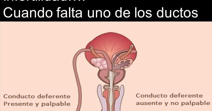 Urología Peruana: Dr. Susaníbar: Cuando falta unos de los conductos ...