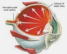 penampang mata glaukoma