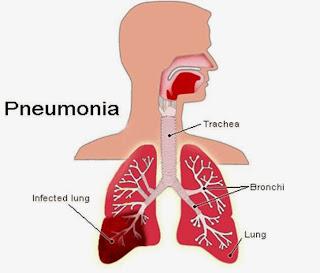 Definisi, Gejala, Penyebab dan Pengobatan Pneumonia
