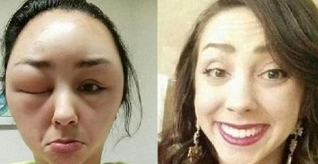 Yang Suka Menggunakan Pewarna Rambut Salah Salah Muka Kamu Berubah