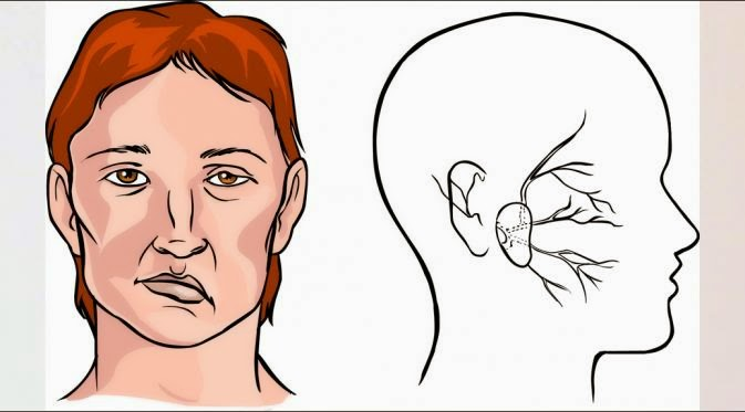 Hati - Hati: Jumlah Penderita Stroke Wanita Meningkat