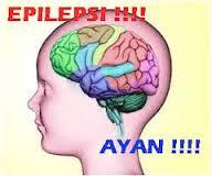 Obat Epilepsi Ayan Kejang-kejang