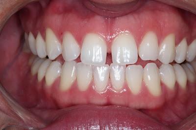 Fonte: http://nataliamosca.com.br/wp-content/themes/odontart/images/tratamentos/facetas-laminadas-antes.jpg