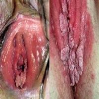 penyakit kutil kelamin pada wanita