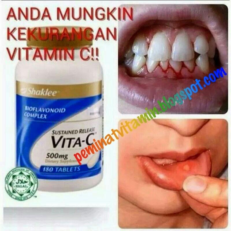 penyakit skurvi akibat kekurangan vitamin c