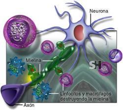 la mielina es la capa gruesa que recubre los axones tallo de las