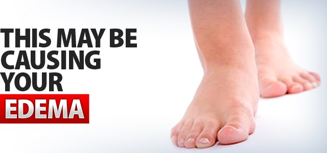 from the normal fluid retention, there are other causes of swelling
