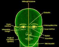 skull radiography landmarks