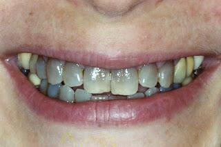 Silver Spring Dentist