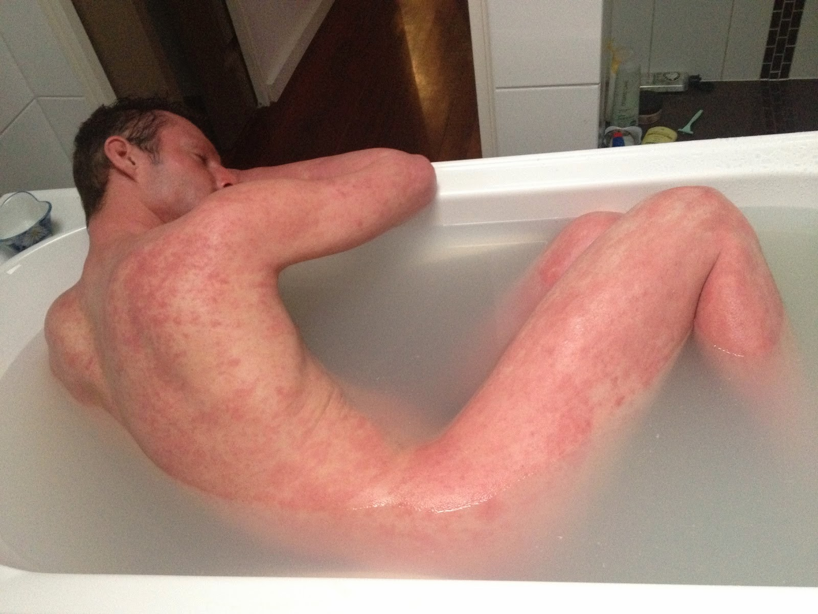 Natural Home Remedies for Eczema – From the Inside Out