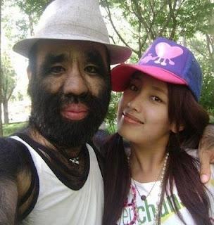 Lelaki Bulu Terlebat Di Dunia Kini Milik Gadis Jelita