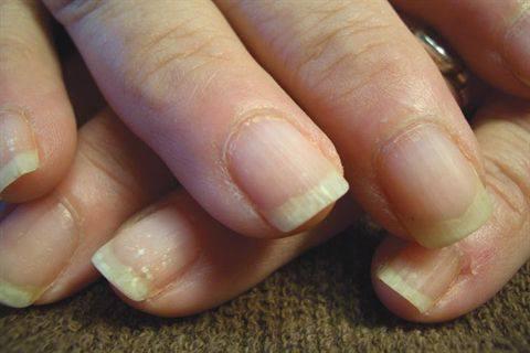 psoriazis unghii