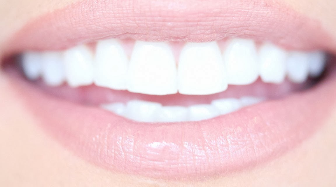 Kandeej Com How To Get Really White Teeth At Home For Cheap