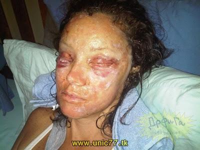 proses pembedahan plastik pada muka
