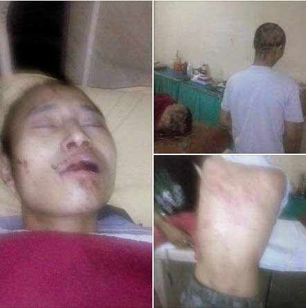 Two North East Youth Beaten Up in  Gurgaon Delhi – Hair Shaved