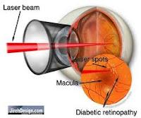 Tratamiento focal con láser