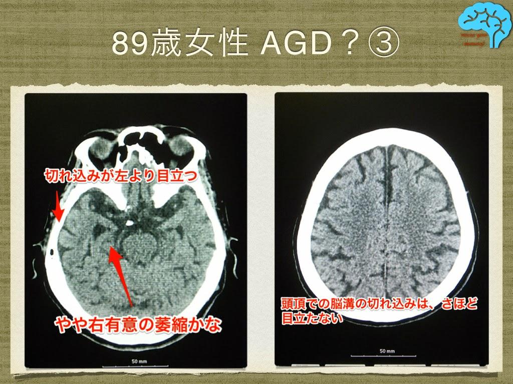 AGD 頭部CT