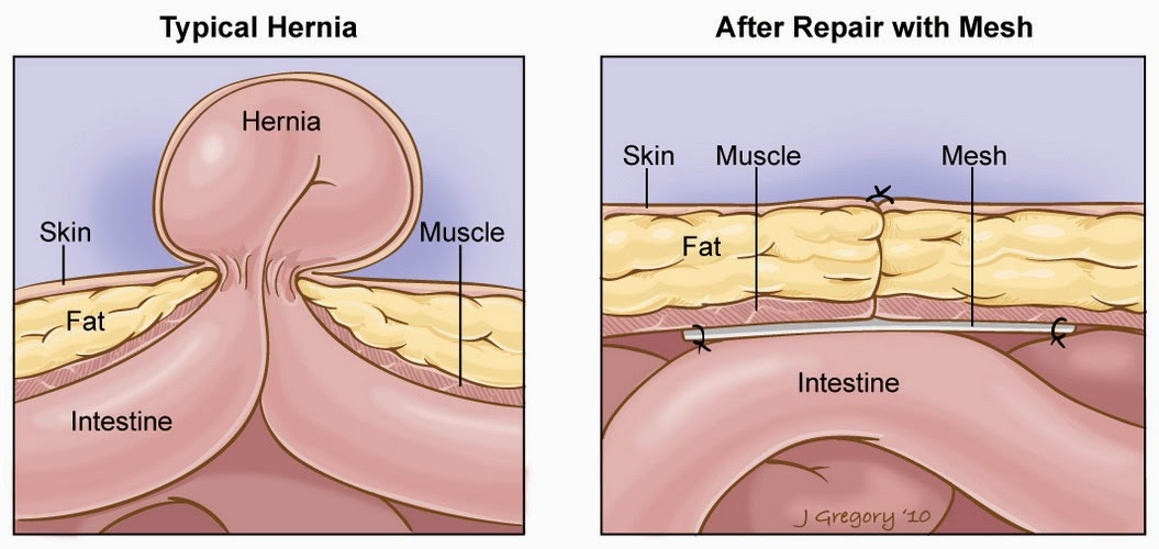 hernia-surgery-before-and-after