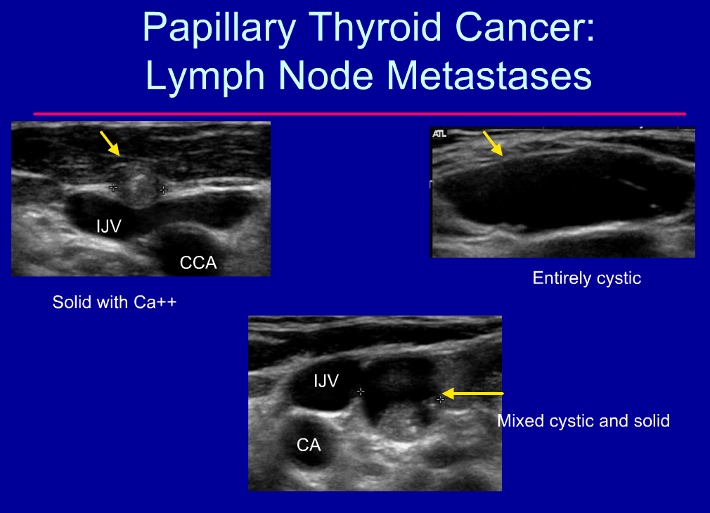 Rsna thyroid and parathyroid us for Cystic lesion with mural nodule