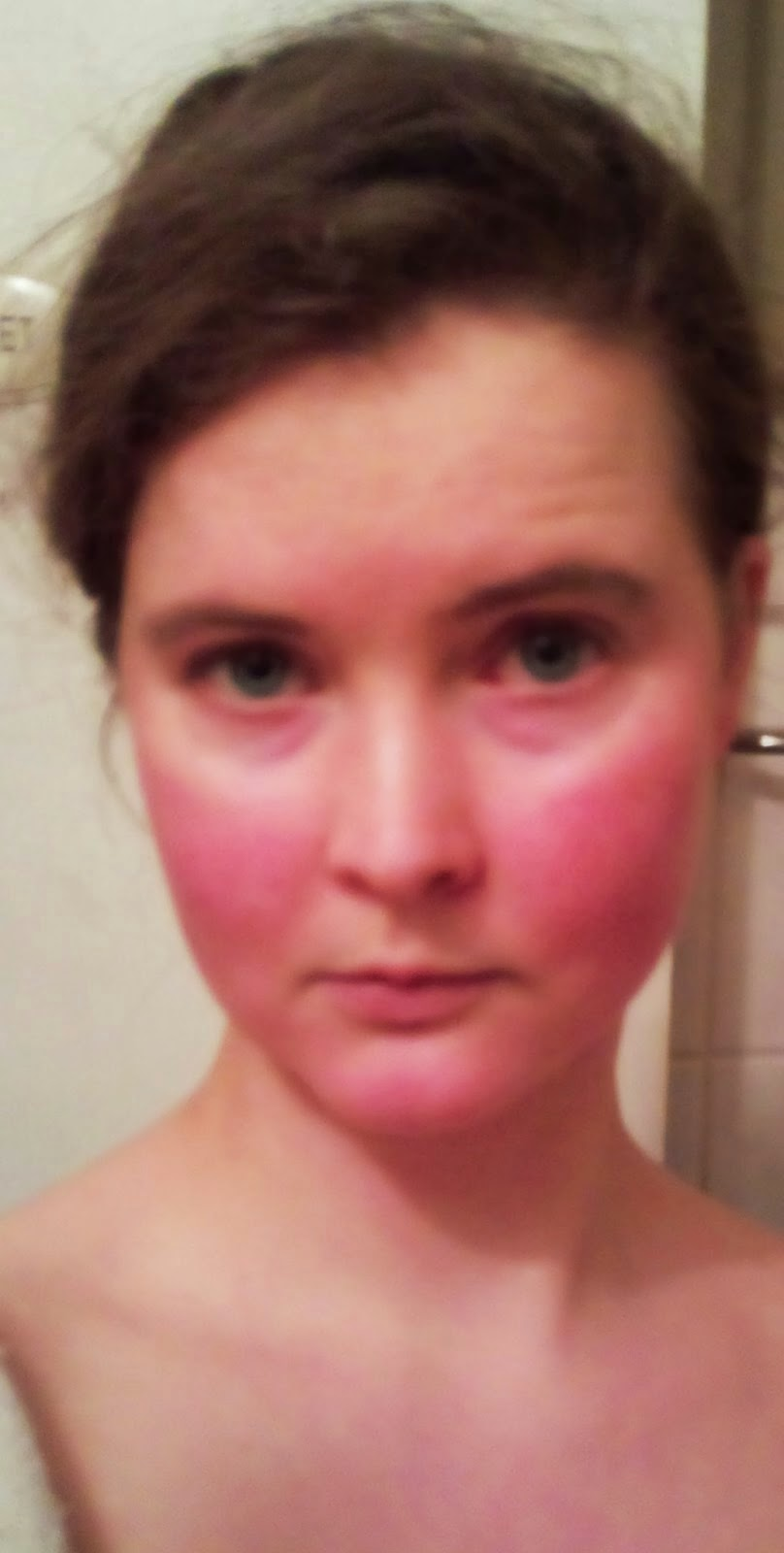 On Burning And Skin Red Face