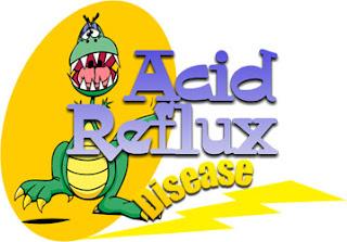 gastroesophageal reflux disease symptoms