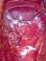 obat keputihan berdarah
