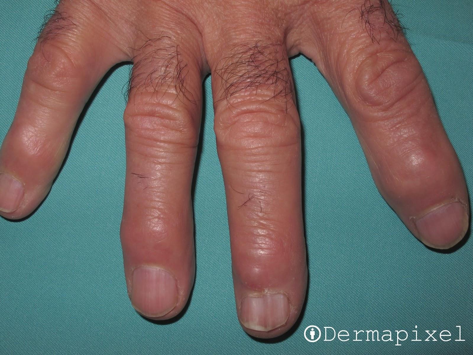 Como curar el hongo de las uñas por la orina