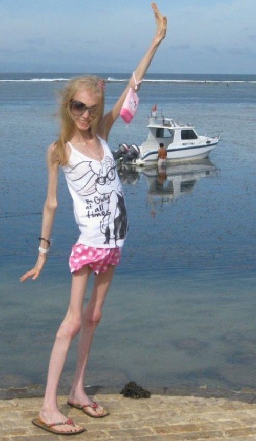 Ksenia Bubenko 1 ΣΟΚ:Είναι 20 ετών και ζυγίζει 20 κιλά!!