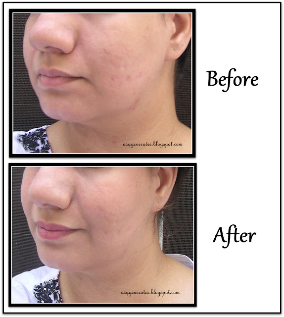 Bourjois Healthy Mix Foundation Before and After picture