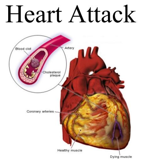 हृदय रोग के आयुर्वेदिक इलाज