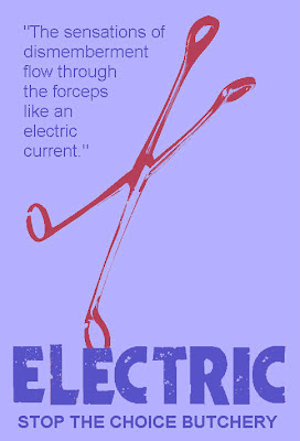 The sensations of dismemberment flow through the forceps like an electric current.