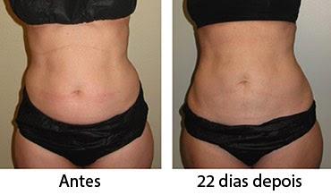 Resultados de criolipólise na barriga e flancos