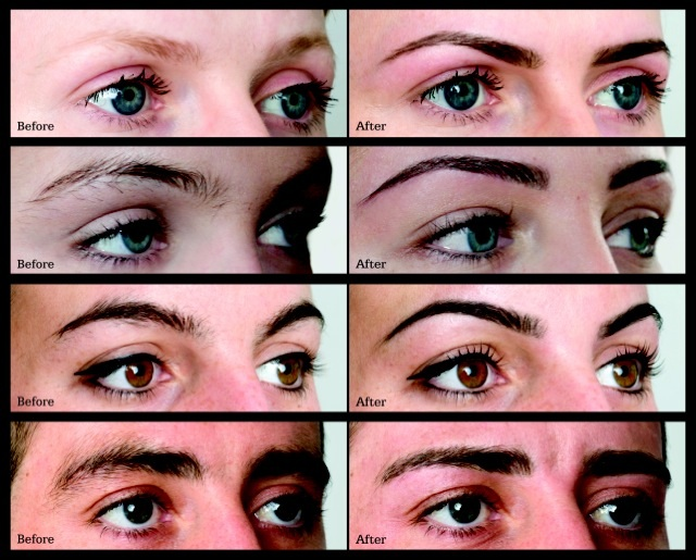 ... Brows before and after pictures of eyebrows, including women and men