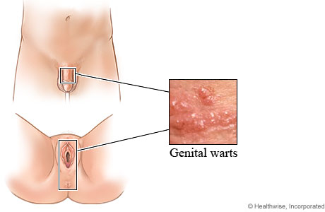 genital warts caused by hpv