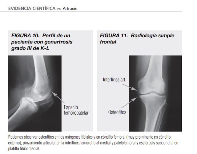 Colegio Mexicano de Ortopedia y Traumatología: Clasificación ...