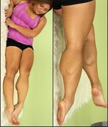 Her Calves