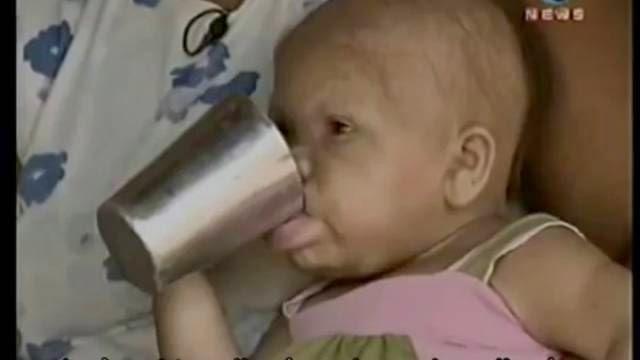 Femme de 28 ans dans un corps de bebe, le plus vieux bébés du monde