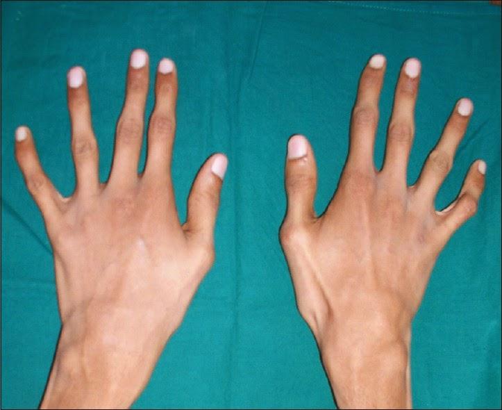 Как сделать длинный палец 881