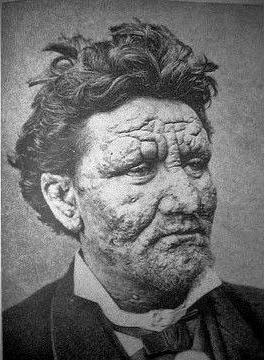 enfermedades letales lepra
