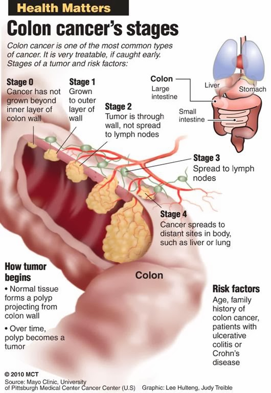 rwebangira blog: prevent colon cancer!, Human Body