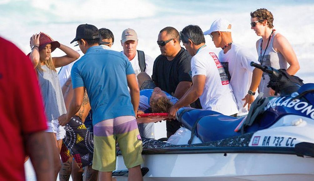 Accidente de Bede Durbidge en el Billabong Pipe Masters