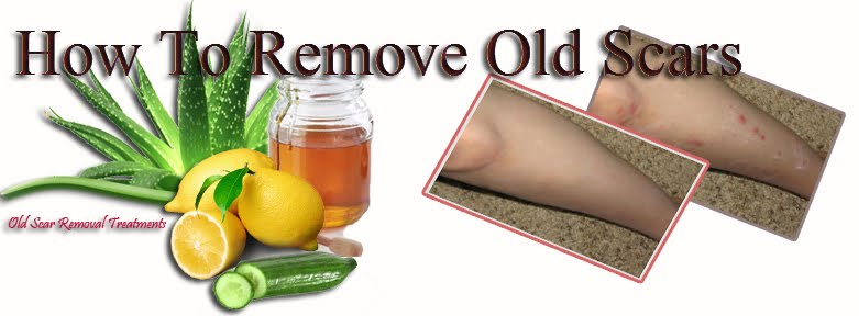 How To Remove Old Scars: Scar Removal Guide