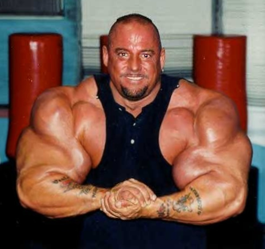 steroid man arm exploded