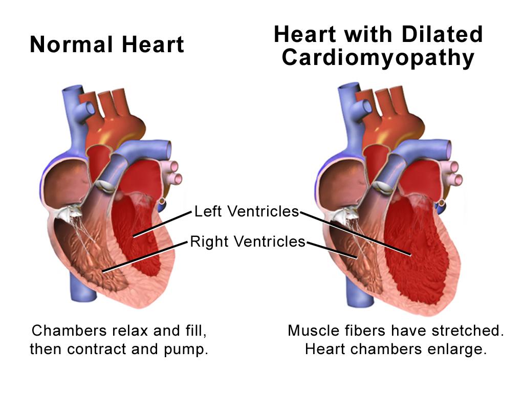 jantung bengkak dan cara mengobatinya