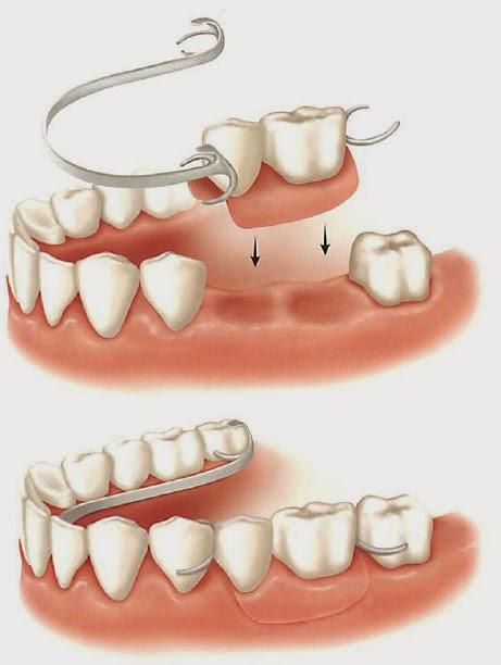 protesis parcial dentista coslada
