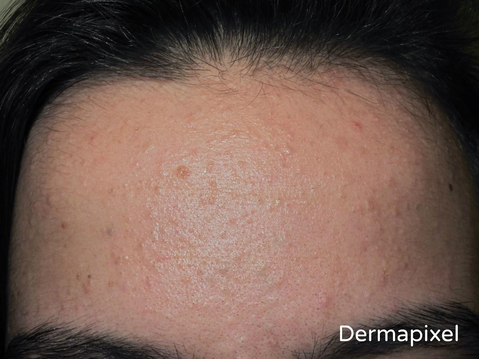 La fototerapia al acné las revocaciones